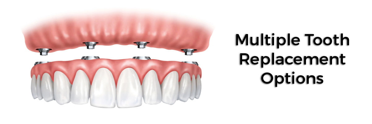 Chicago Multiple Teeth Replacement Options