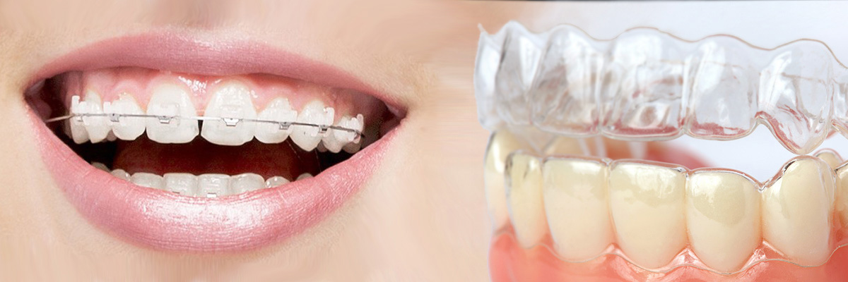 Chicago Which is Better Invisalign or Braces
